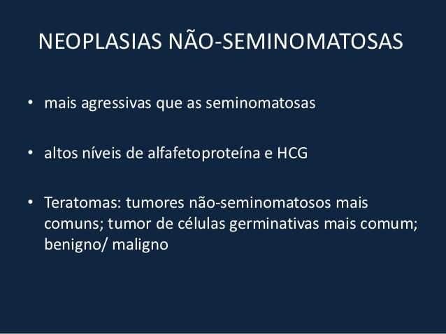 HIPERPLASIA TÍMICA - TC• Aumento difuso e simétrico da glândula• A glândula se ajusta a forma das estruturas  adjacentes• ...