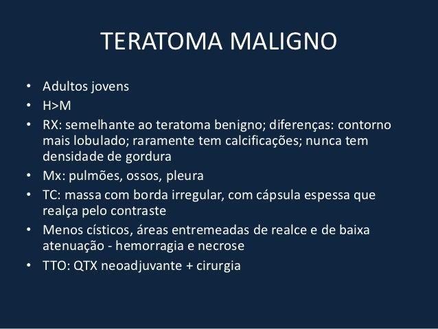 TIMOMA• É a neoplasia primária mais comum do mediastino anterior• 50 – 60 anos• H=M• Classificação: timoma encapsulado; lo...