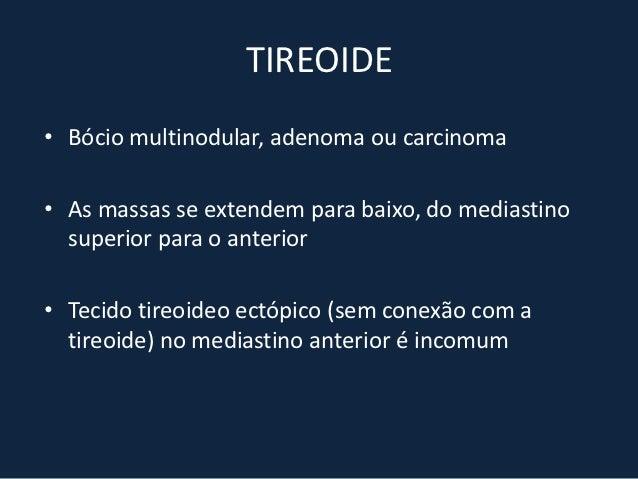 ADENOMA DE PARATIREOIDE• 10 a 20% da população: paratireoides ectópicas• Mediastino anterior (62 a 81%) e posterior (20%)•...