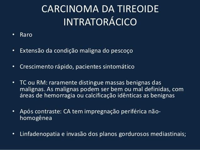 CISTO PLEUROPERICÁRDICO• Assintomáticos• 75% ocorrem no ângulo cardiofrênico anterior direito• Radiologia: massa de tecido...