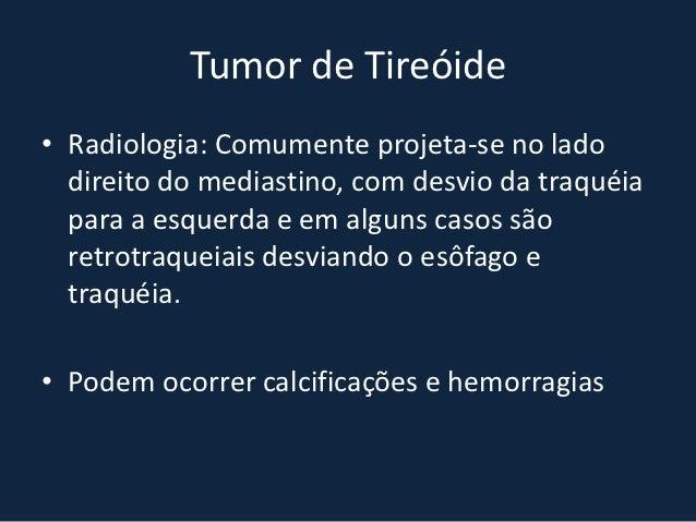 HÉRNIA DE MORGAGNI• Defeito     do       desenvolvimento        persistente  anteriormente ao diafragma, entre os septos  ...