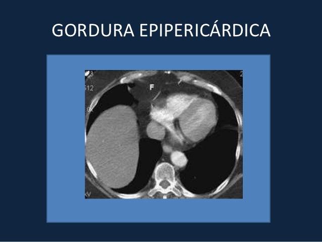 ANEURISMA DE AORTA• Aneurisma dissecante:Tipo A: envolvem aorta ascendente, arco e aorta  descendenteTipo B: envolvem aort...