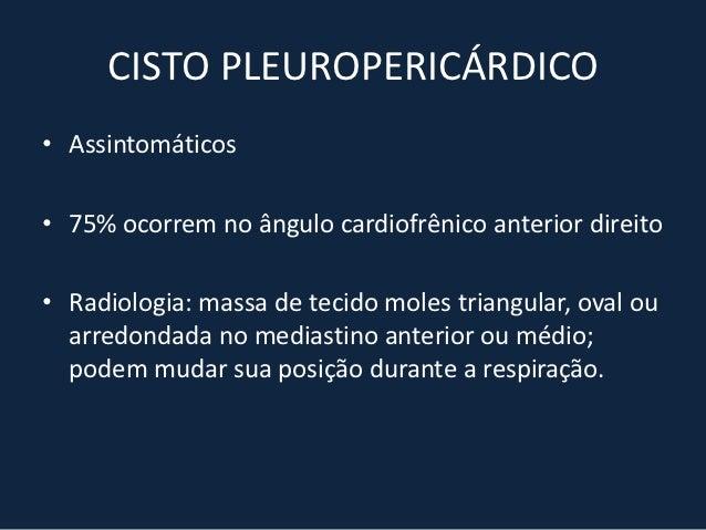 Aneurisma de arco aórtico                            Aneurisma de aorta descendente