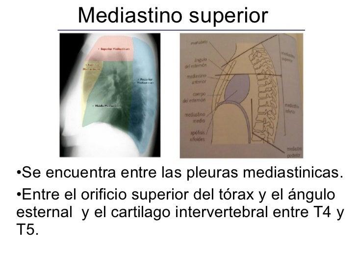 Mediastino superior  <ul><li>Se encuentra entre las pleuras mediastinicas.  </li></ul><ul><li>Entre el orificio superior d...