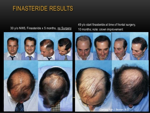 finasteride 1mg twice a week