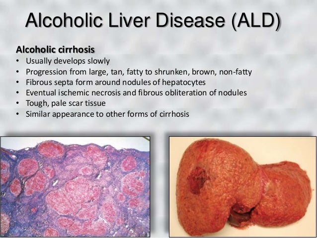 Dental Patients with Liver Disease