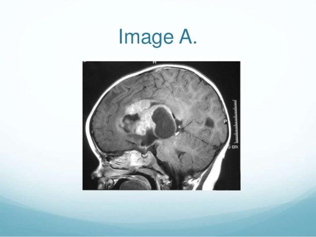 Image A.