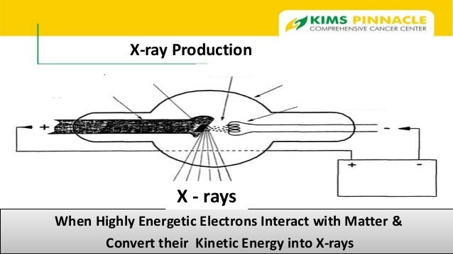 x ray production diagram gallery