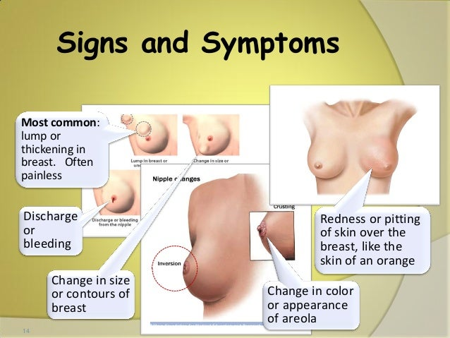 Breast Cancer A Study Early Detection