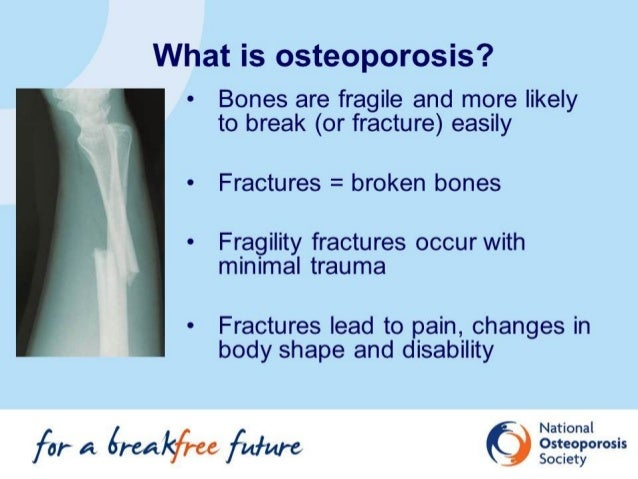 all about osteoporosis | what is osteoporosis?, Skeleton