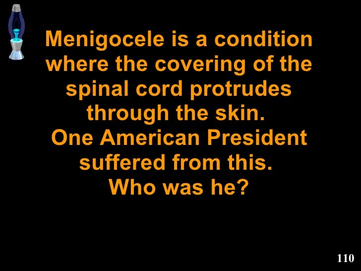 Menigocele is a condition where the covering of the spinal cord protrudes through the skin.  One American President suffer...