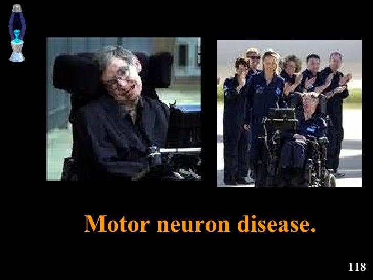 Motor neuron disease.