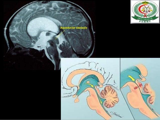 Suboccipital Compression amp Headaches  kylecwrightcom