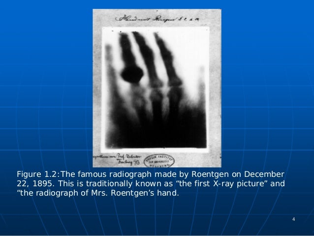 the history of scientific research and the discovery of the x ray in radiography It would also mark the beginning of a scientific and technological adventure, that  will  this last discovery – that x-rays could offer a glimpse inside the human  body  on x-ray machines for medical applications, and the unfortunate research .