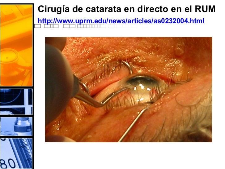 Cirugía de catarata en directo en el RUM  http://www.uprm.edu/news/articles/as0232004.html