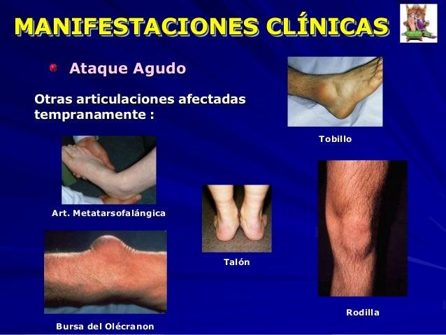 tratamiento para prevenir la gota menu para el acido urico alto metabolismo de purinas acido urico