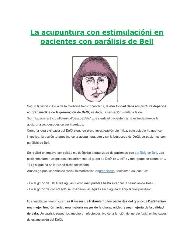 La acupuntura con estimulacióni en pacientes con parálisis de Bell Según la teoría cláscia de la medicina tradicional chin...