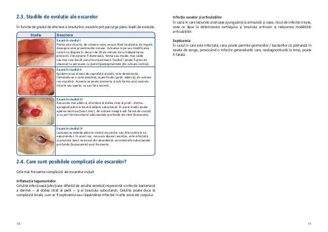 Tratamentul artritei goutite folk remedii