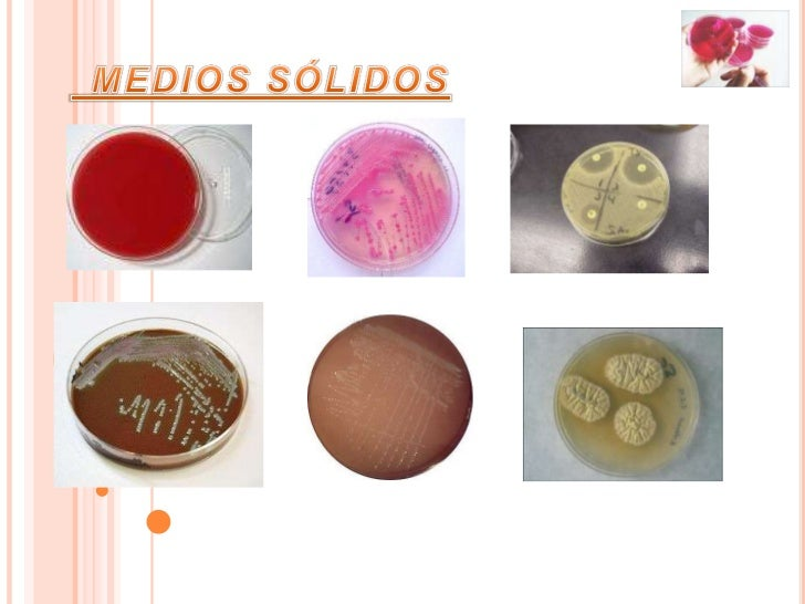 Enriquecimiento    Nutritivo                Selectivo y                diferencialClasificación de los mediosde cultivo se...