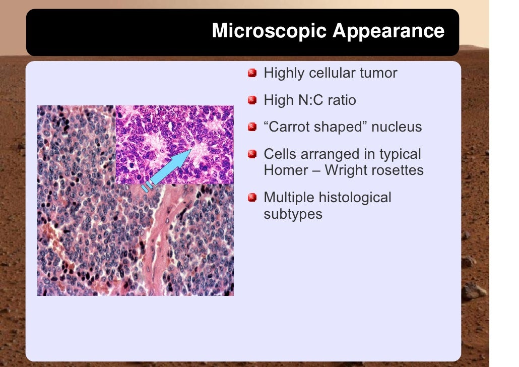 """Microscopic Appearance      Highly cellular tumor     High N:C ratio     """"Carrot shaped"""" nucleus     Cells arranged in typ..."""