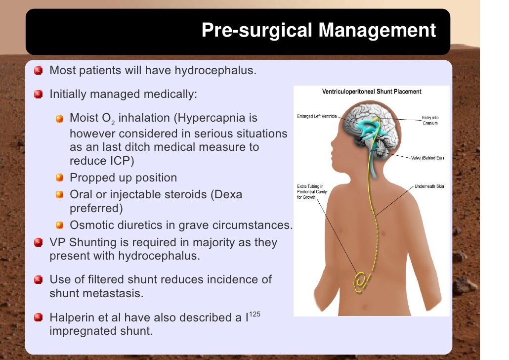 Pre-surgical Management Most patients will have hydrocephalus. Initially managed medically:    Moist O2 inhalation (Hyperc...