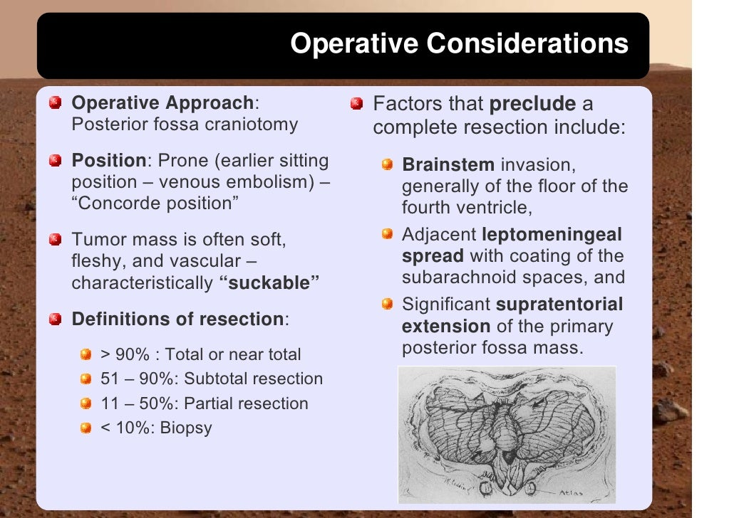 Operative Considerations                                     Factors that preclude a Operative Approach: Posterior fossa c...
