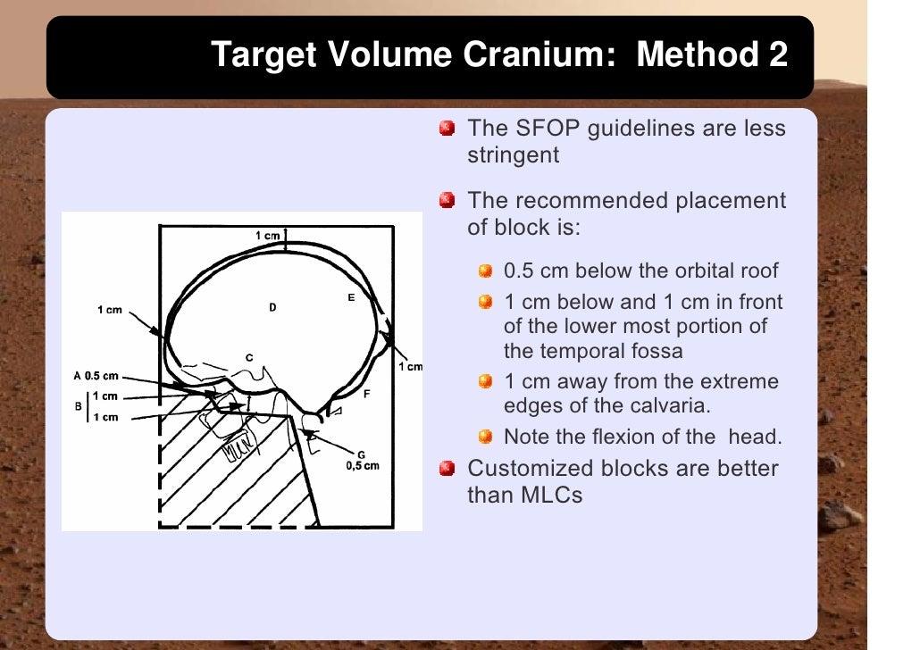 Target Volume Cranium: Method 2              The SFOP guidelines are less              stringent              The recommen...