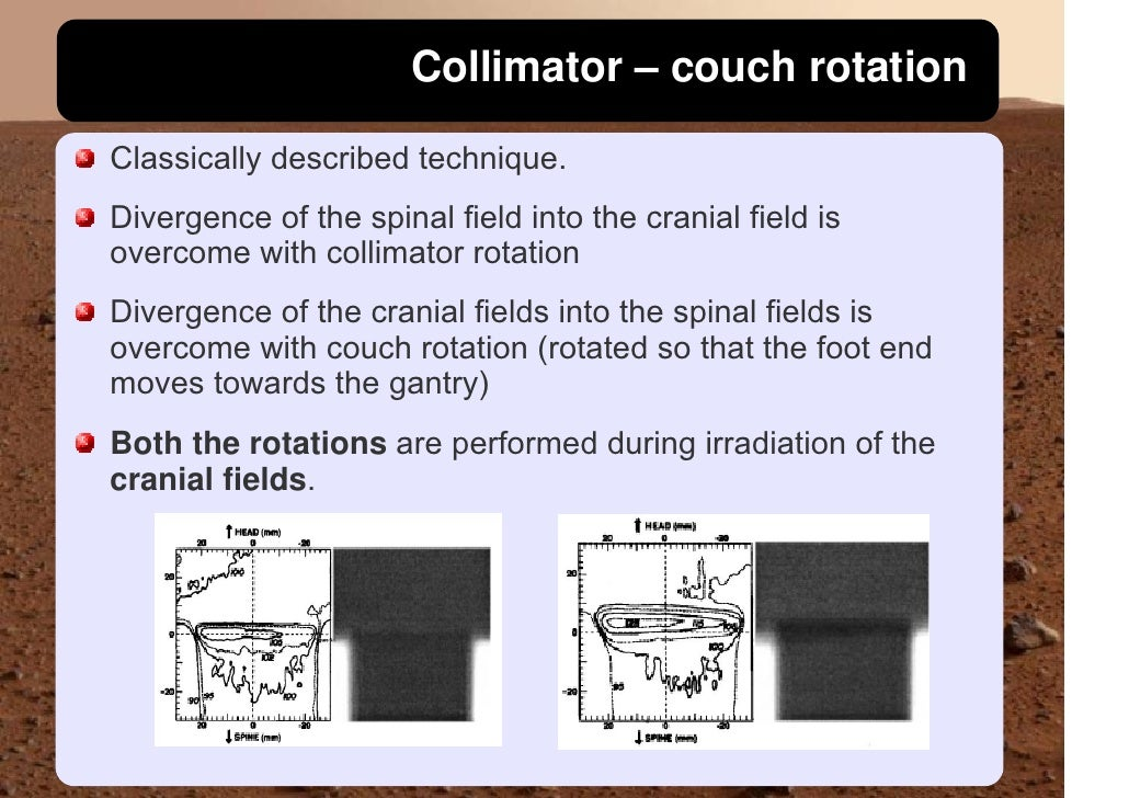 Collimator – couch rotation  Classically described technique. Divergence of the spinal field into the cranial field is ove...