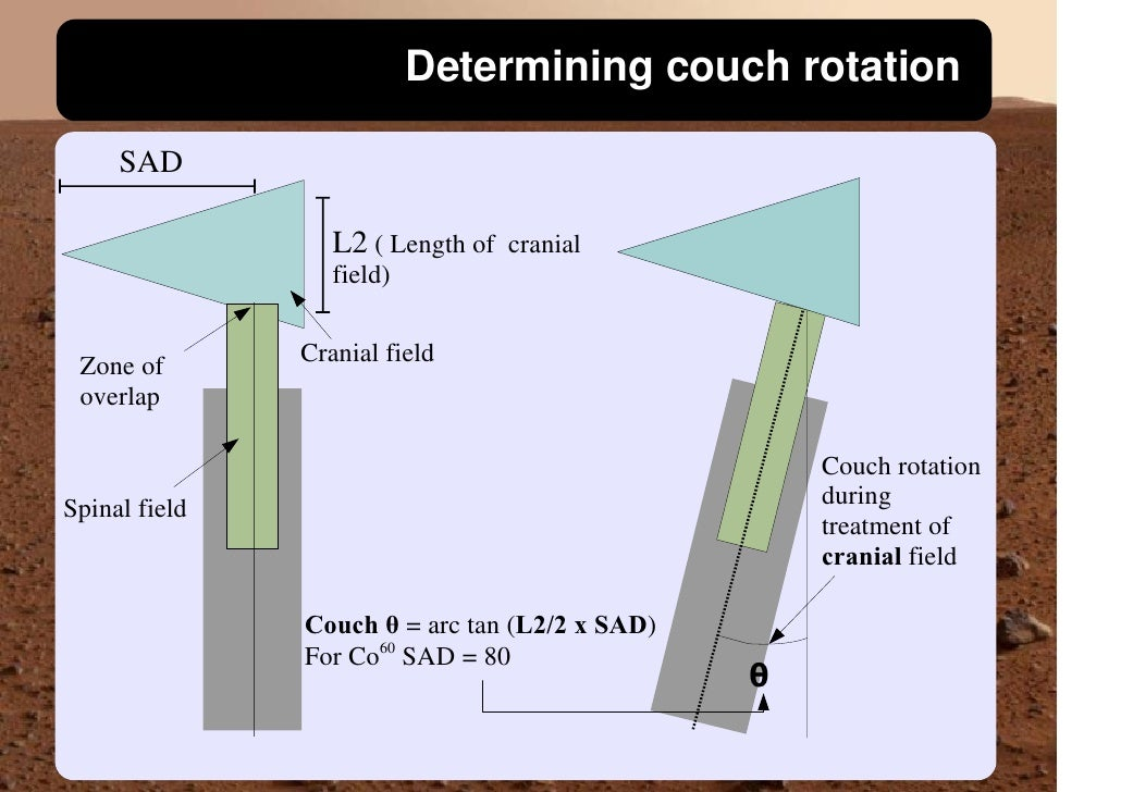 Determining couch rotation       SAD                    L2 ( Length of cranial                   field)                 Cr...