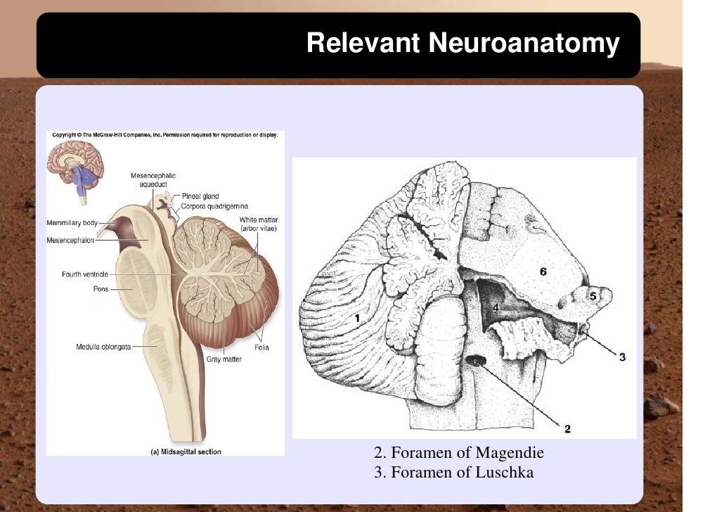 Relevant Neuroanatomy         2. Foramen of Magendie     3. Foramen of Luschka