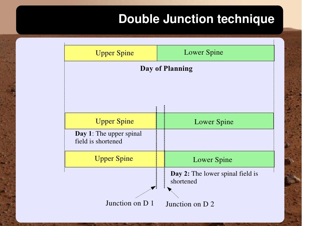 Double Junction technique                                    Lower Spine        Upper Spine                        Day of ...