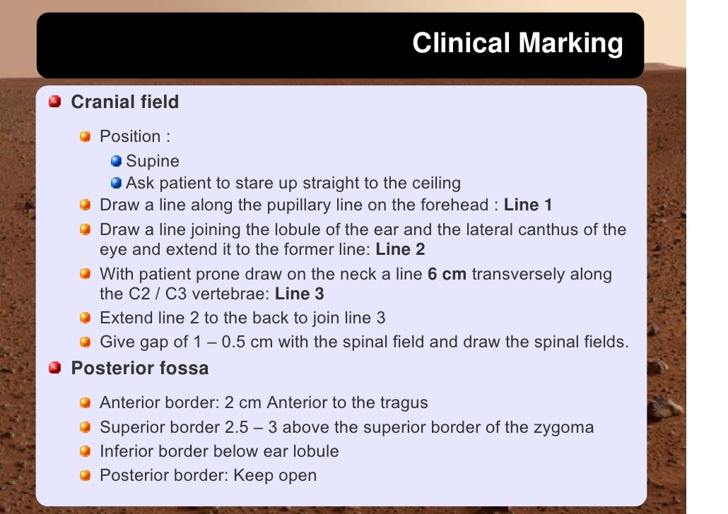 Clinical Marking  Cranial field    Position :       Supine       Ask patient to stare up straight to the ceiling    Draw a...