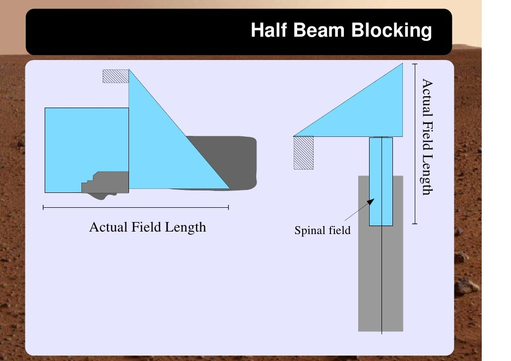 Half Beam Blocking                                              Actual Field Length Actual Field Length       Spinal field
