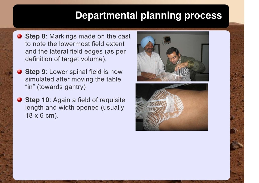 Departmental planning process  Step 8: Markings made on the cast to note the lowermost field extent and the lateral field ...