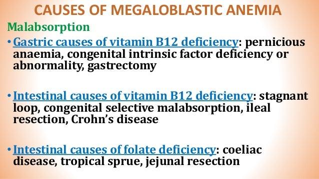 megaloblastic anemia by dr  sookun rajeev kumar