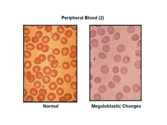 megaloblastic anemias, Skeleton