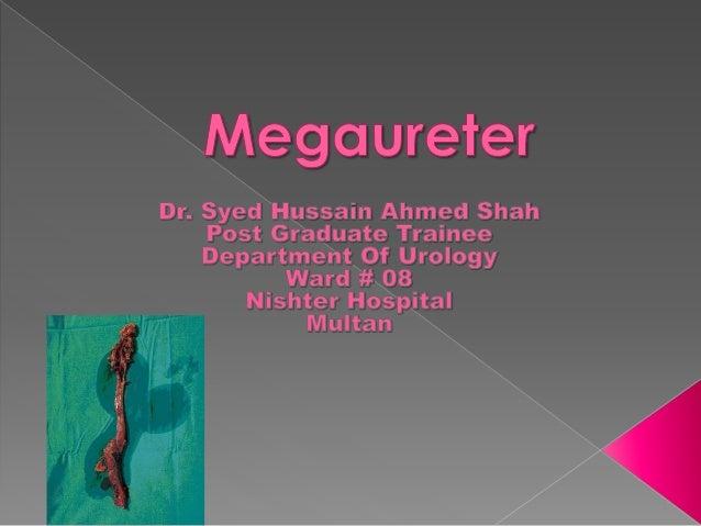 megaureter ppt types pathophysiology evaluation and. Black Bedroom Furniture Sets. Home Design Ideas