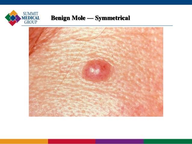 Melanoma – Prevention, Detection and Treatment