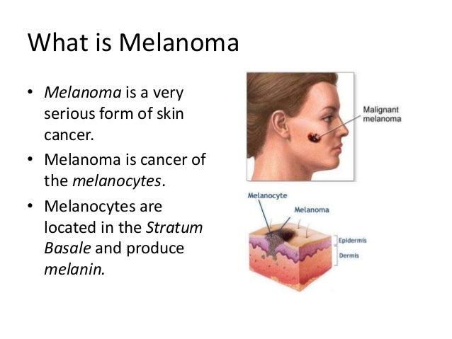 malignant melanoma, Skeleton