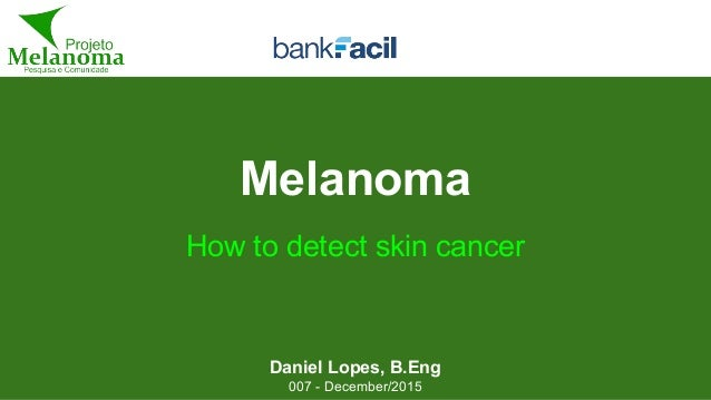 Melanoma Daniel Lopes, B.Eng 007 - December/2015 How to detect skin cancer