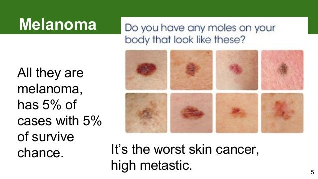 melanoma: how to detect skin cancer, Human Body