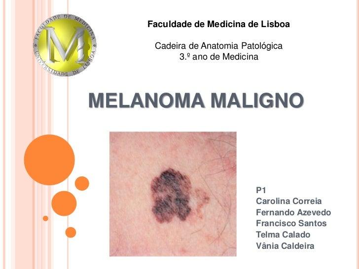 Faculdade de Medicina de Lisboa<br />Cadeira de Anatomia Patológica<br />3.º ano de Medicina<br />MELANOMA MALIGNO<br />P1...