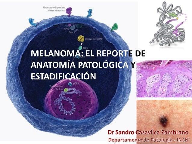Tipos de Melanoma • De Extension Superficial • Nodular • Lentigo Maligno • Lentiginoso Acral • Otros