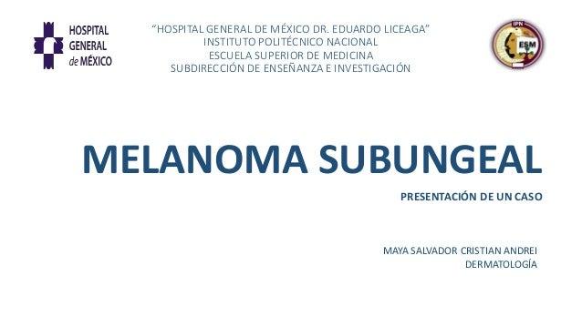 """""""HOSPITAL GENERAL DE MÉXICO DR. EDUARDO LICEAGA"""" INSTITUTO POLITÉCNICO NACIONAL ESCUELA SUPERIOR DE MEDICINA SUBDIRECCIÓN ..."""