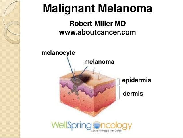 Malignant Melanoma Robert Miller MD www.aboutcancer.com melanocyte melanoma  epidermis dermis