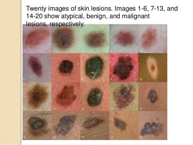 melanoma video slides, Human Body
