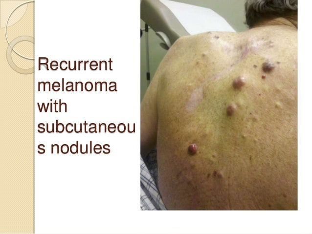 Melanoma video slides