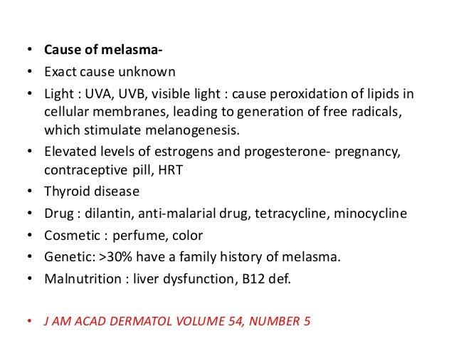 Melasma treatment Slide 3
