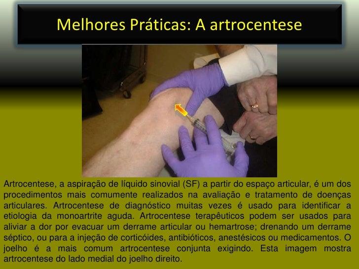Melhores Práticas: A artrocentese<br />Artrocentese, a aspiração de líquido sinovial (SF) a partir do espaço articular, é ...