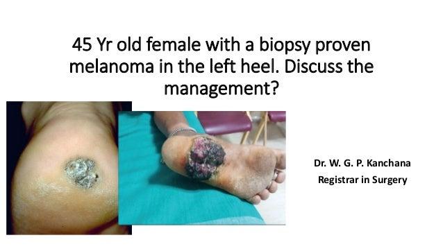 management of malignant melanoma